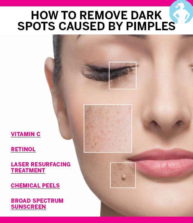 Dark spots on face